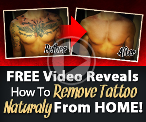 remove tattoo